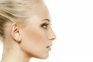 Безоперационная ринопластика: корректируем нос