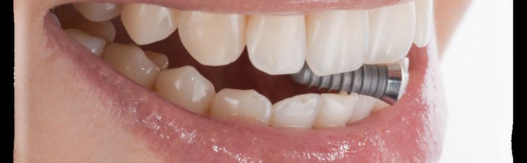 Современная имплантация зубов - миф или реальность. Зубы из титана
