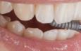 Современная имплантация зубов — миф или реальность. Зубы из титана