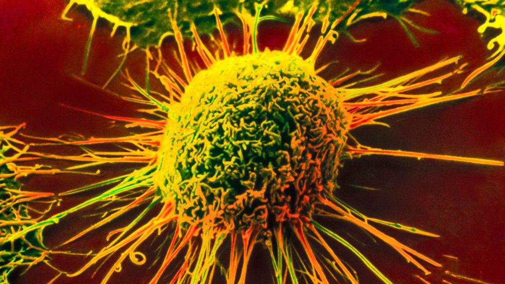 Химический канцерогенез