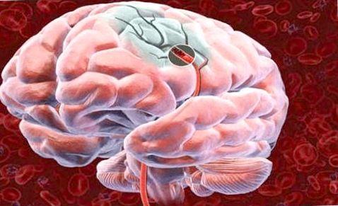 Инсульт мозговой