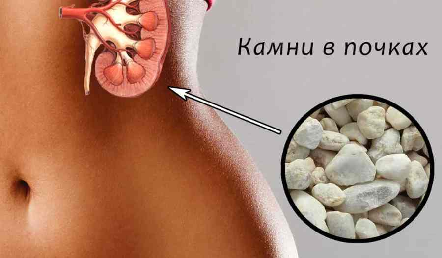 Питание влияет на камни в почках