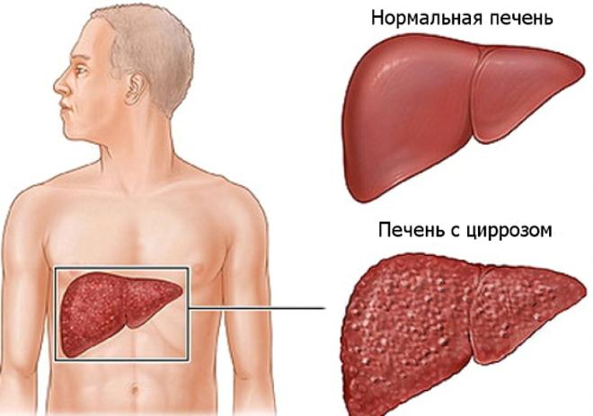 Цирроз нармед