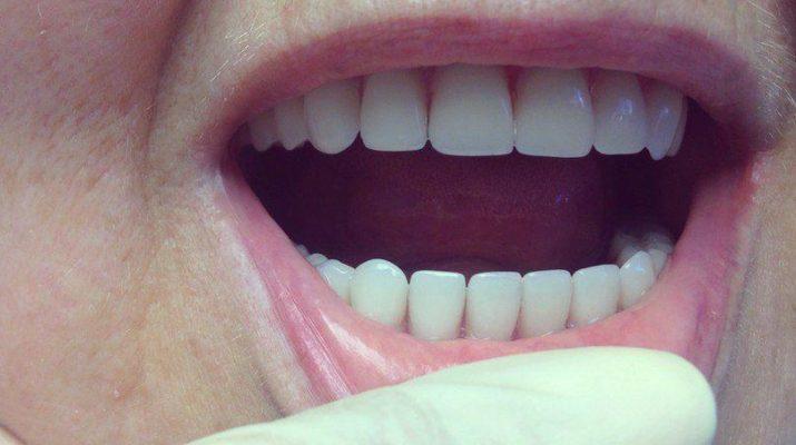 nejlonovye zubnye protezy