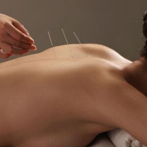 ispolzovanie akupunktury dlya uluchsheniya zdorovya